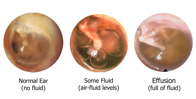 Otitis Media With Effusion: Treating Fluid in the Ear